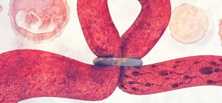 El anillo vaginal es muy útil y nada molesto