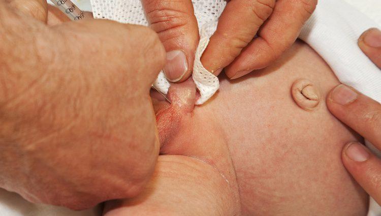 Esta enfermedad provoca una malforación en el pene de los bebés