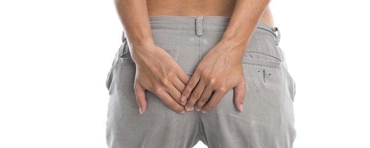 Las hemorroides son pequeñas venas que se inflaman en el conducto anal