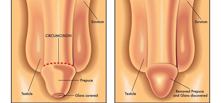 pene no circuncidado en erección