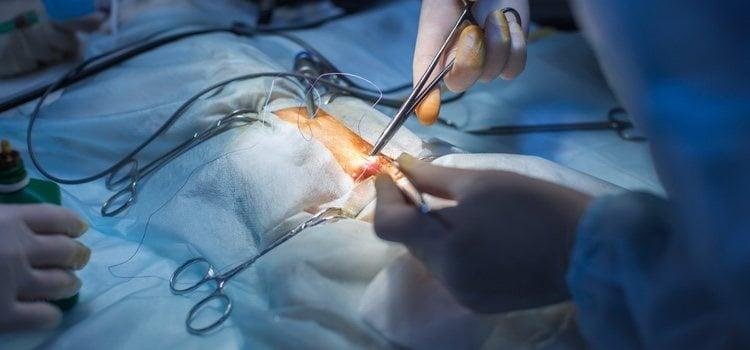 La histerectomía es una operación que te extirpa el útero
