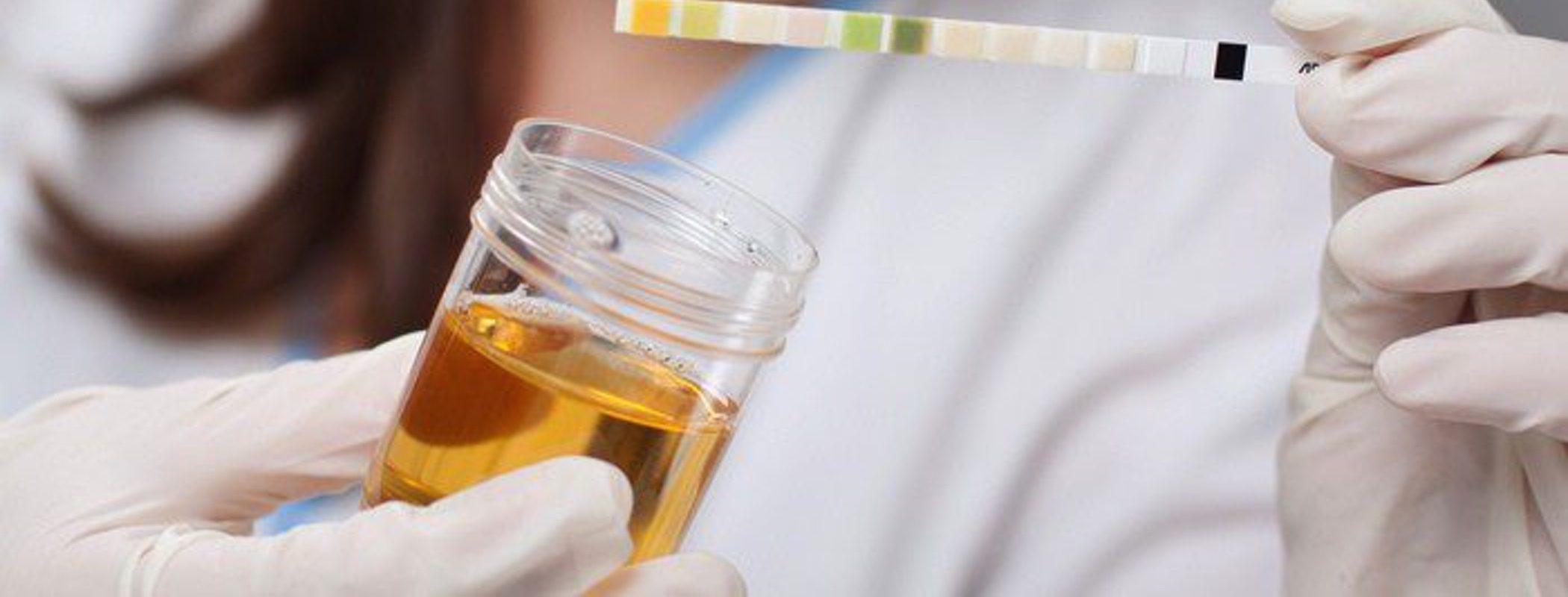 Gonorrea: diagnóstico y tratamiento