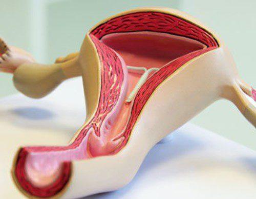 'ABC' del prolapso uterino