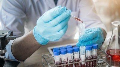 Sida: Mitos y leyendas sobre esta enfermedad